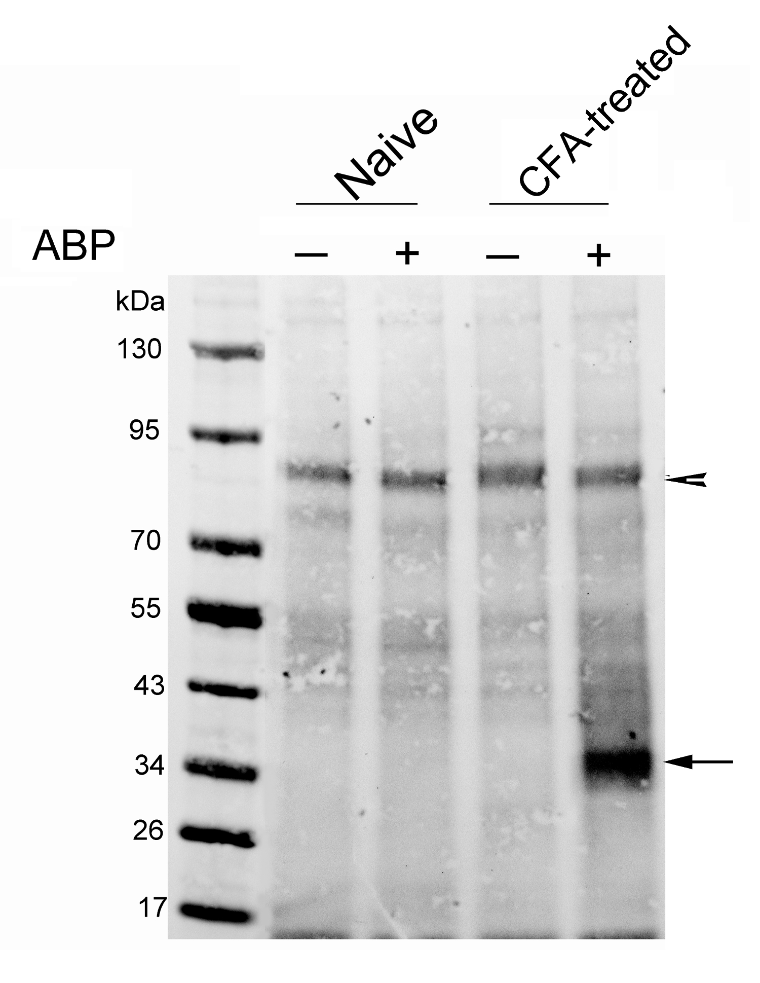Preparation and In Vivo Use of an Activity-based Probe for N