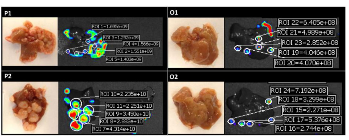 Advanced Animal Model of Colorectal Metastasis in Liver: Imaging