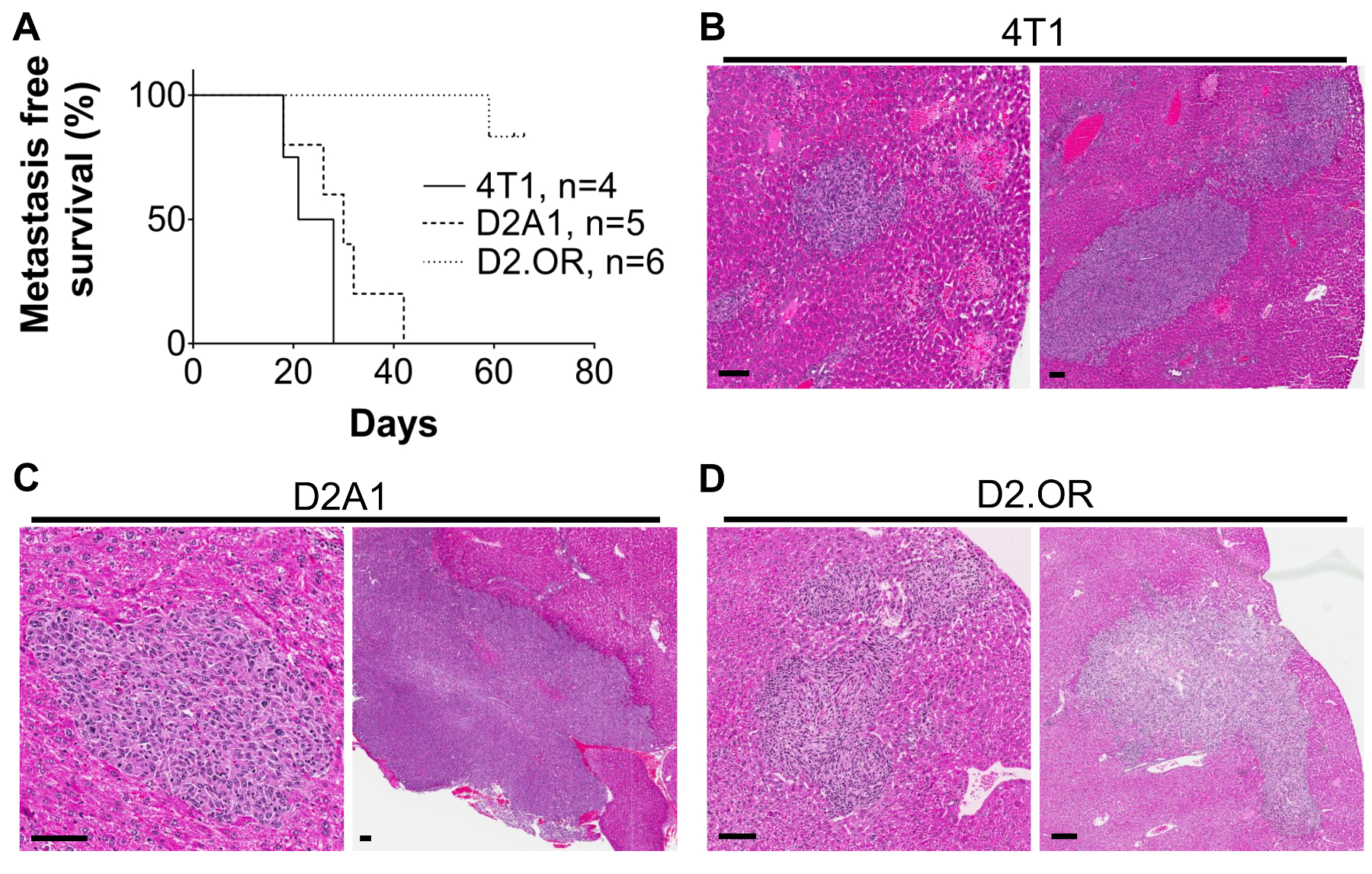 A Portal Vein Injection Model to Study Liver Metastasis of Breast