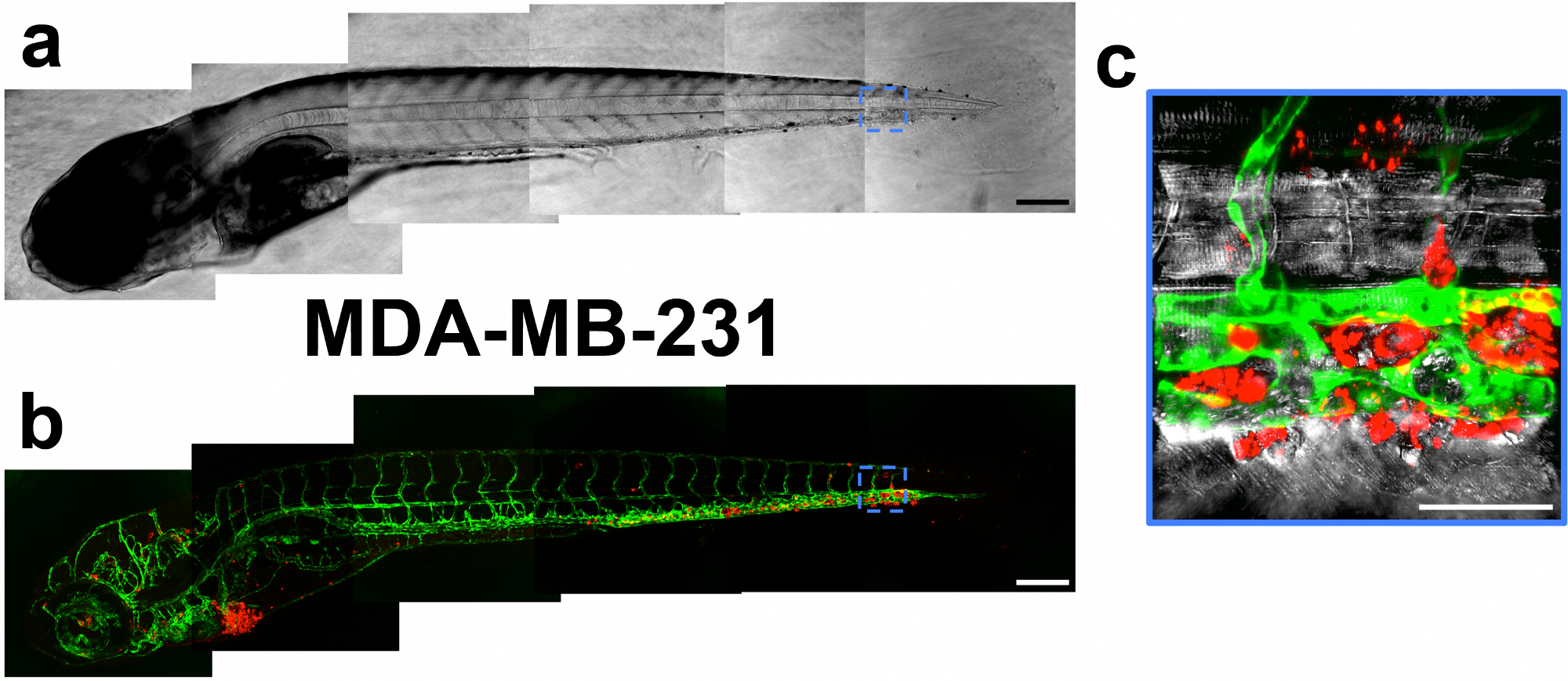 Testing the Vascular Invasive Ability of Cancer Cells in Zebrafish