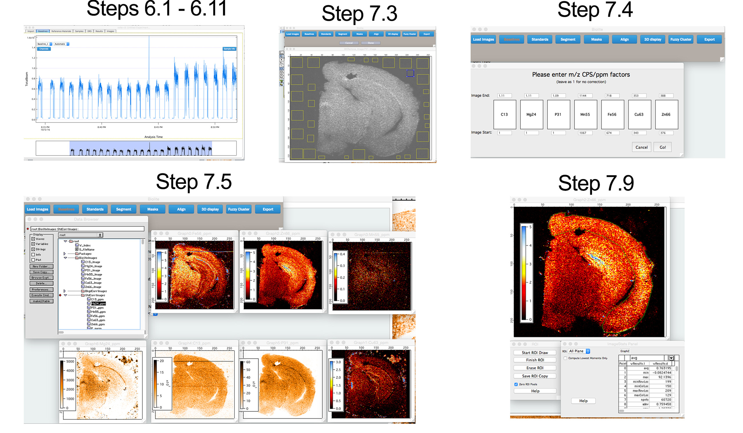 Imaging Metals in Brain Tissue by Laser Ablation