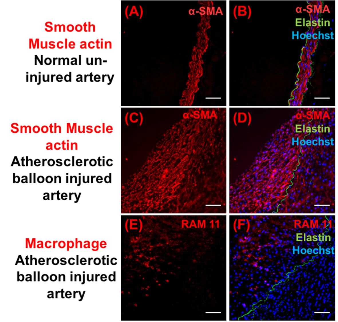 405a141a4483 The Rabbit Model of Accelerated Atherosclerosis  A Methodological ...
