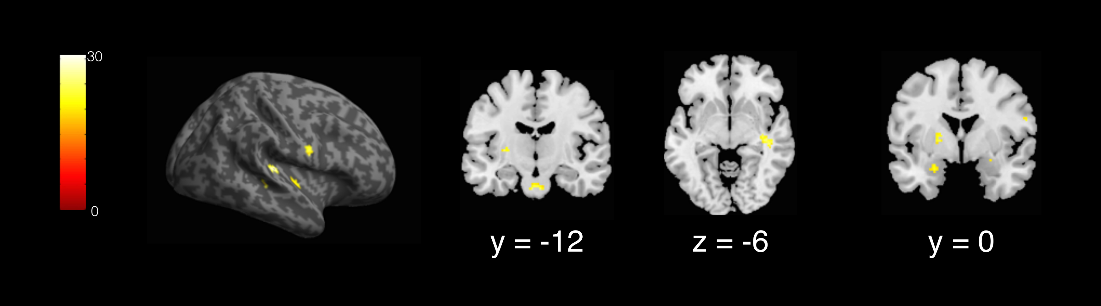 fMRI Mapping of Brain Activity Associated with the Vocal Production