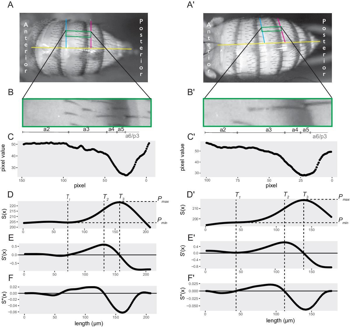 Quantifying Abdominal Pigmentation in Drosophila