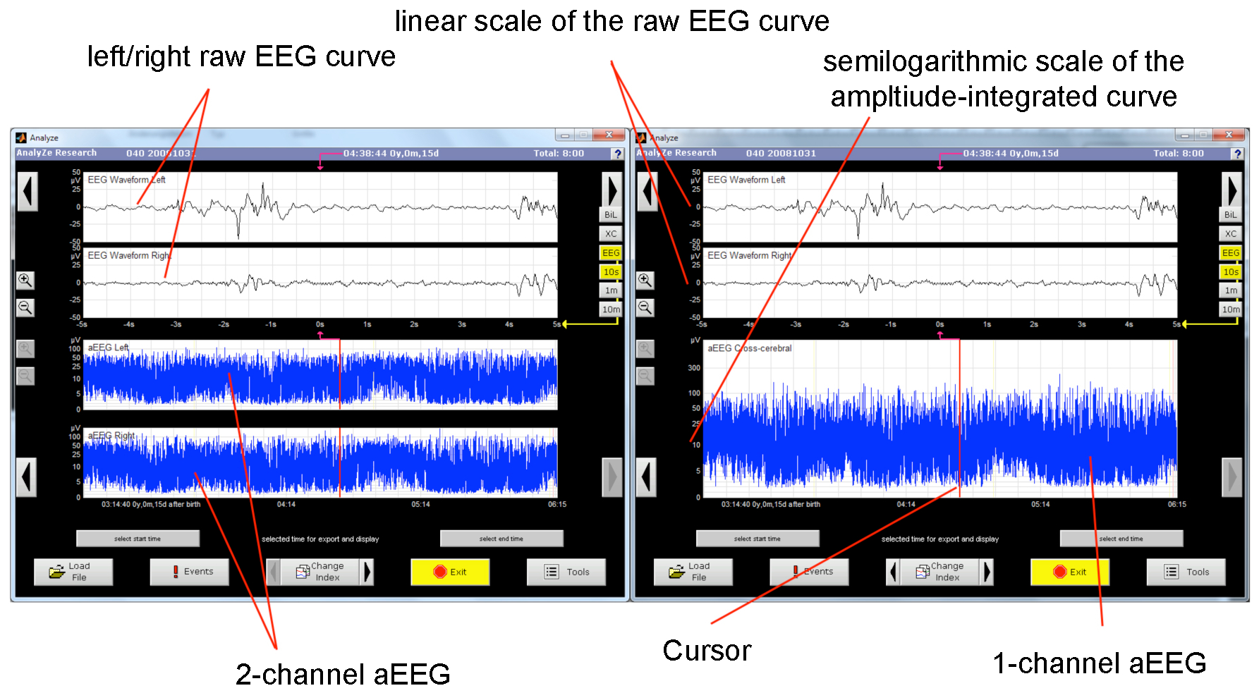 Application of an Amplitude-integrated EEG Monitor (Cerebral