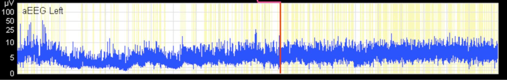 Application of an Amplitude-integrated EEG Monitor (Cerebral