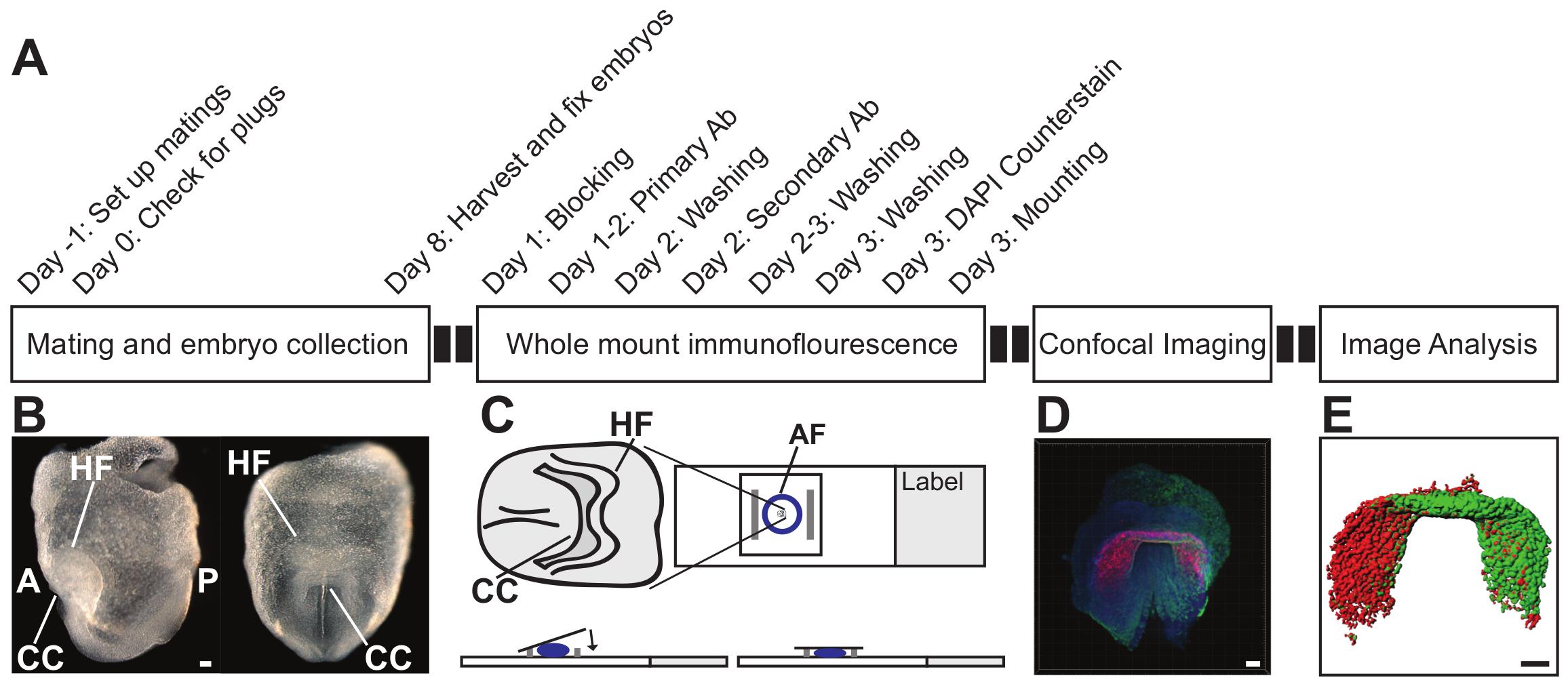 Quantitative Whole-mount Immunofluorescence Analysis of