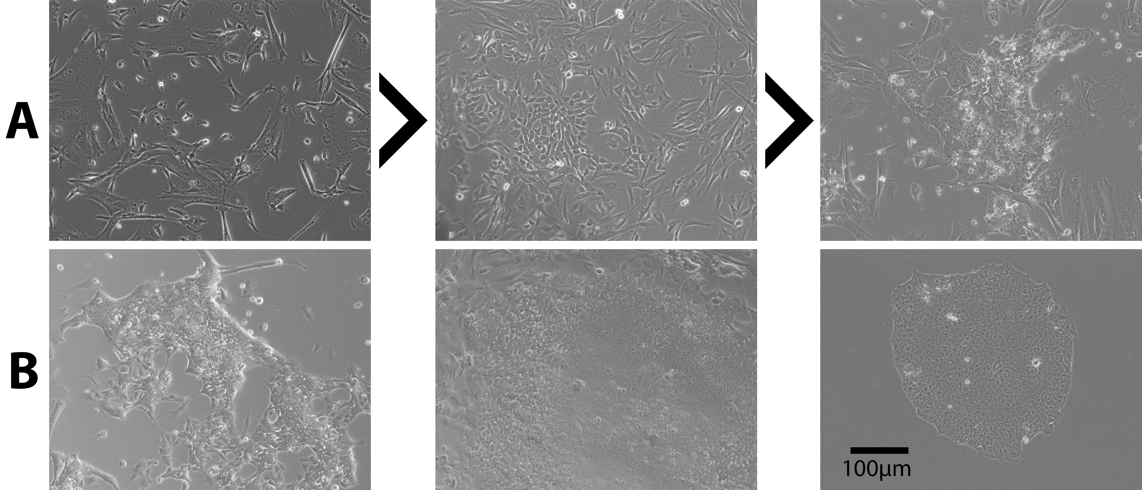 Reprogramming Primary Amniotic Fluid and Membrane Cells to