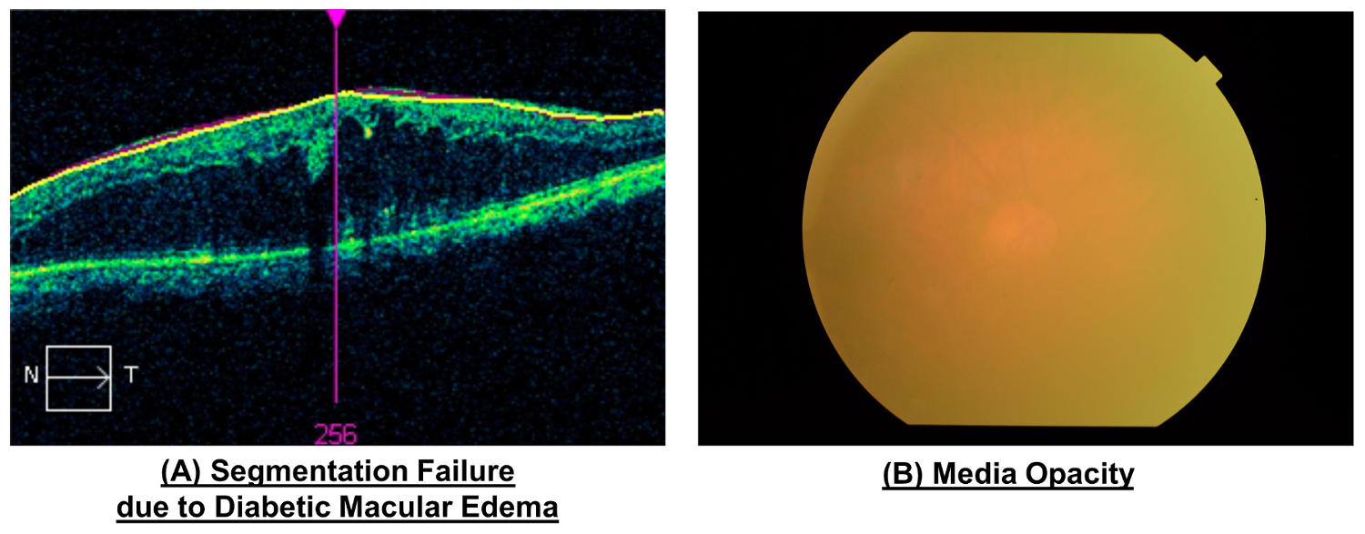 using retinal imaging to study dementia protocolplease click here to view a larger version of this figure