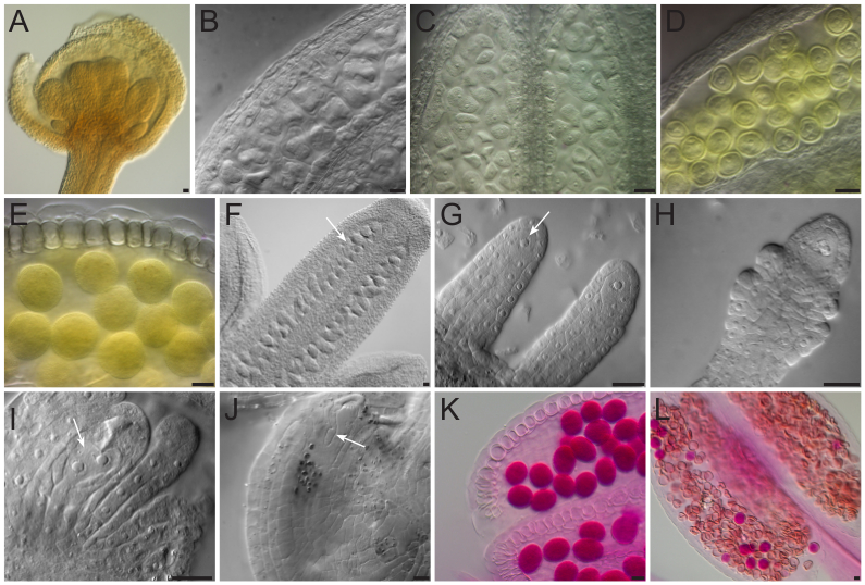 Whole Mount Clearing And Staining Of Arabidopsis Flower Organs And