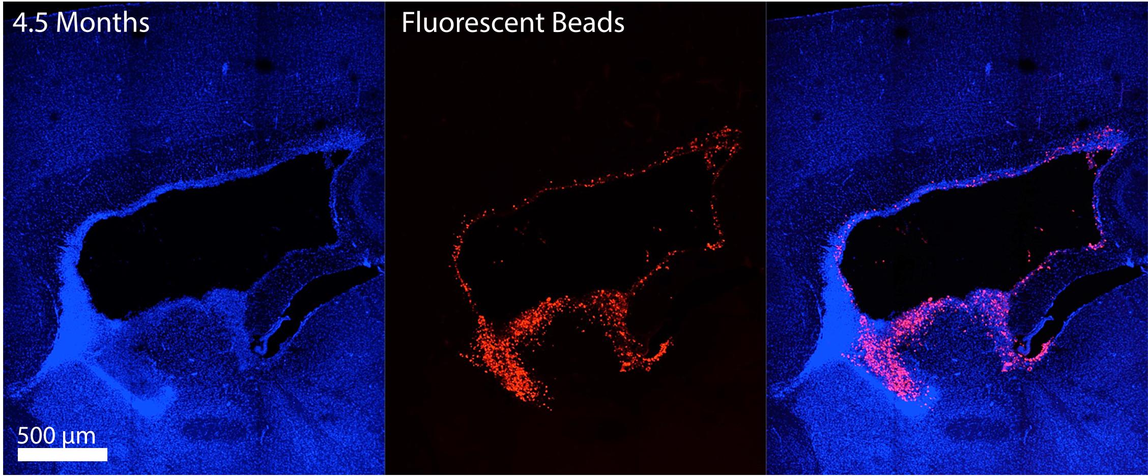 Establishing Mouse Models For Zika Virus Induced Neurological