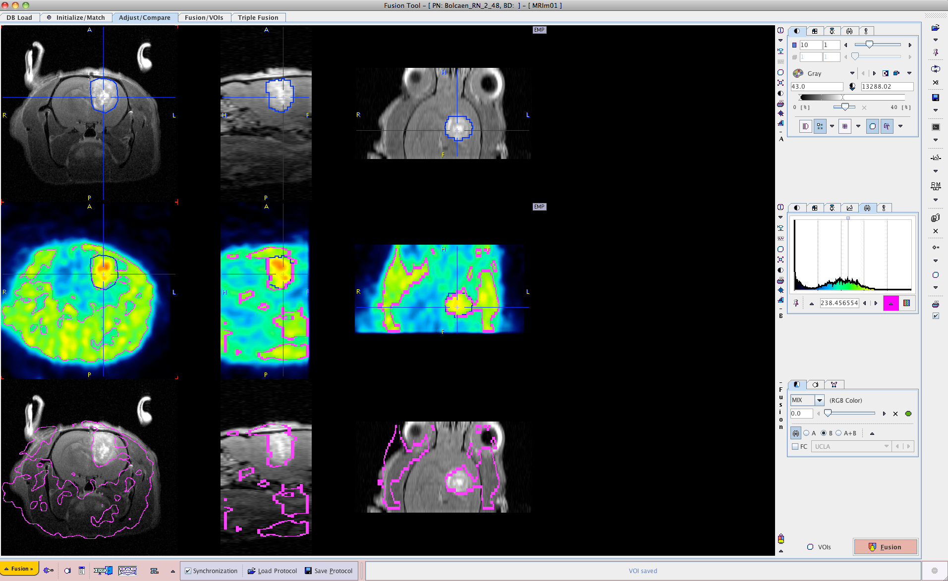 PET and MRI Guided Irradiation of a Glioblastoma Rat Model Using a