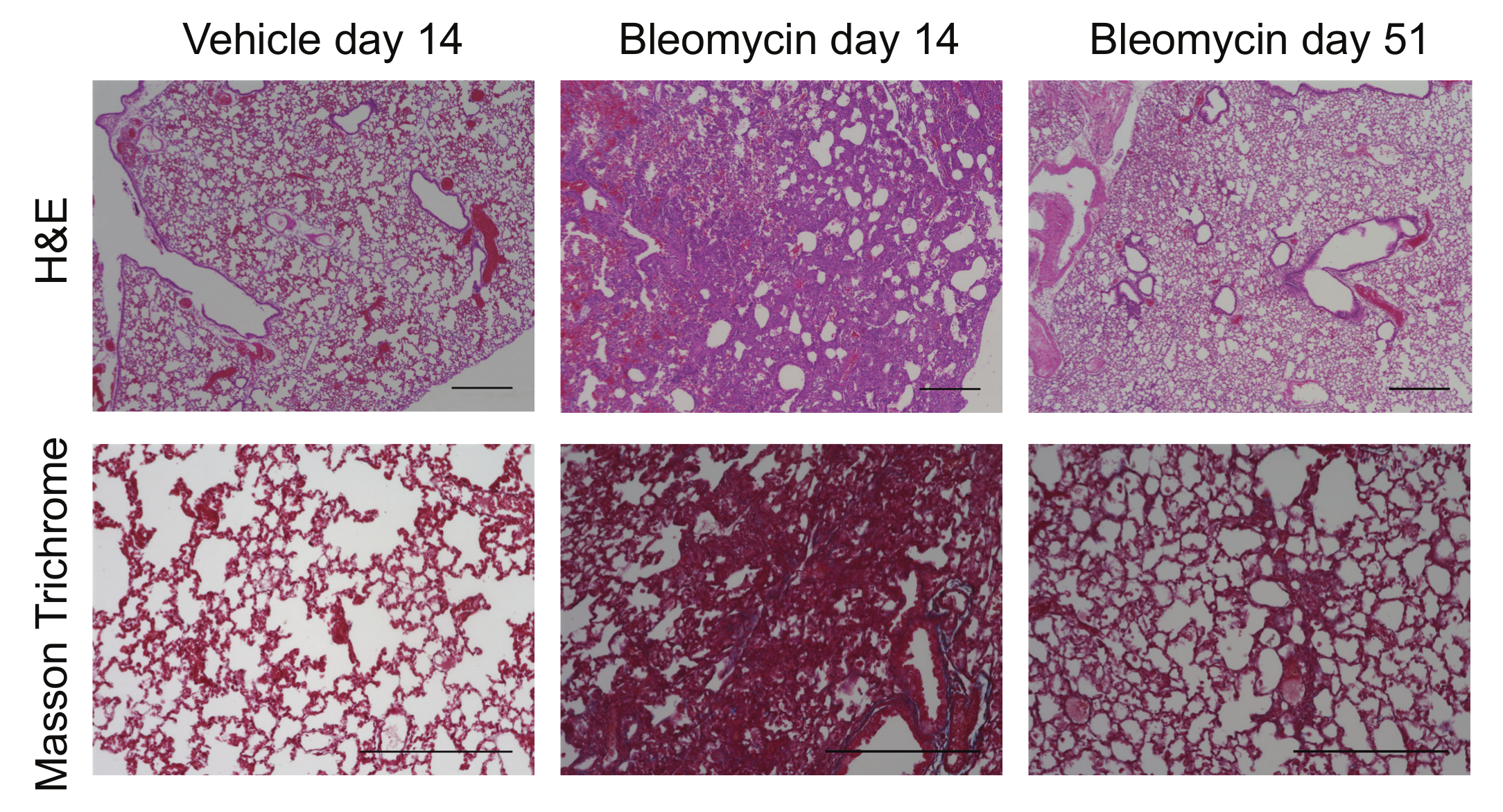 Pre Conditioning The Airways Of Mice With Bleomycin Increases The