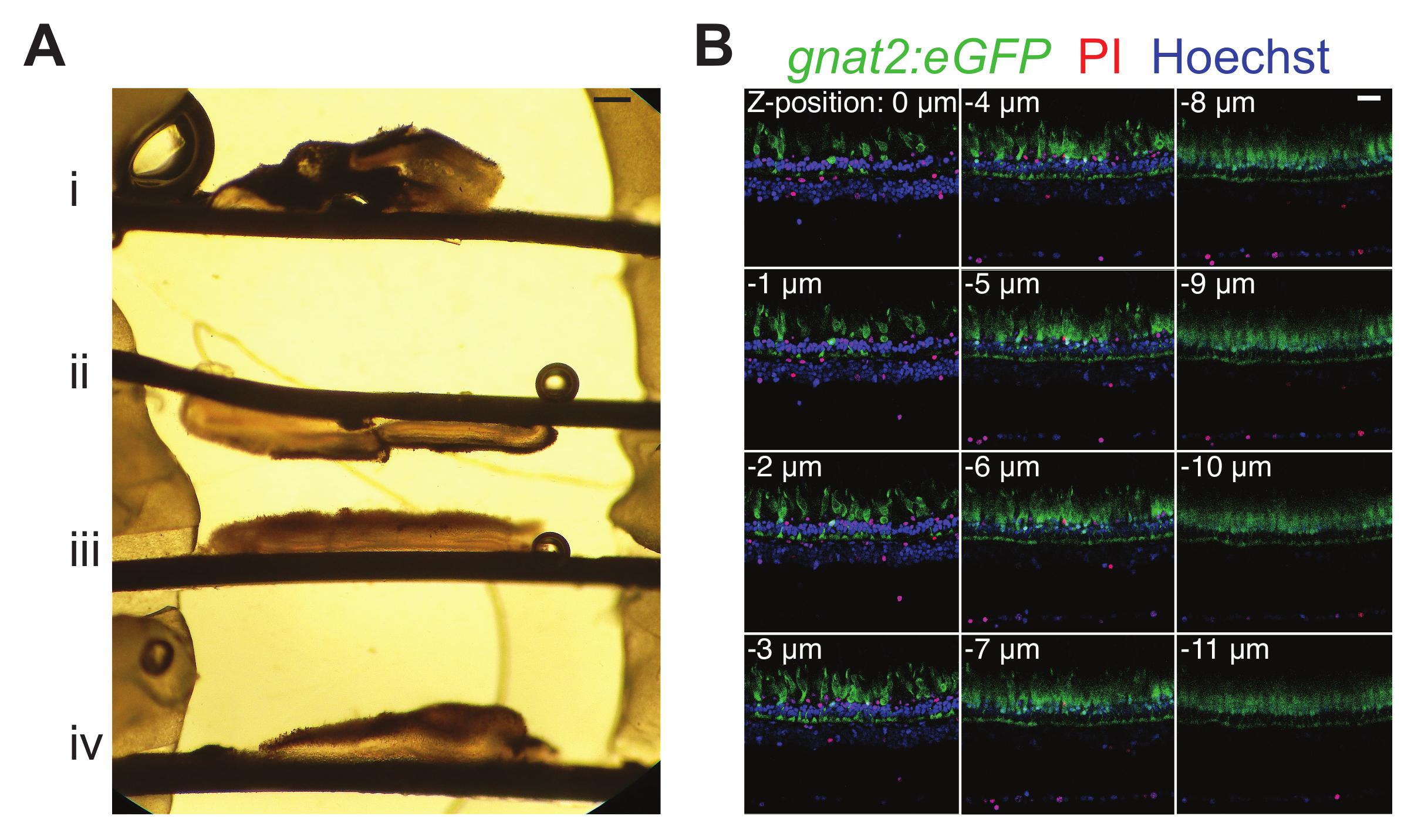 Preparing Fresh Retinal Slices from Adult Zebrafish for Ex Vivo