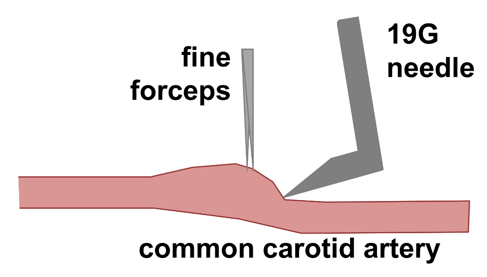 In Vivo Gene Transfer To The Rabbit Common Carotid Artery