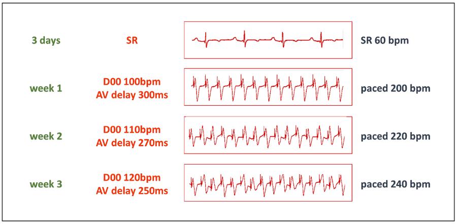 Tachycardia-Induced Cardiomyopathy As a Chronic Heart Failure Model