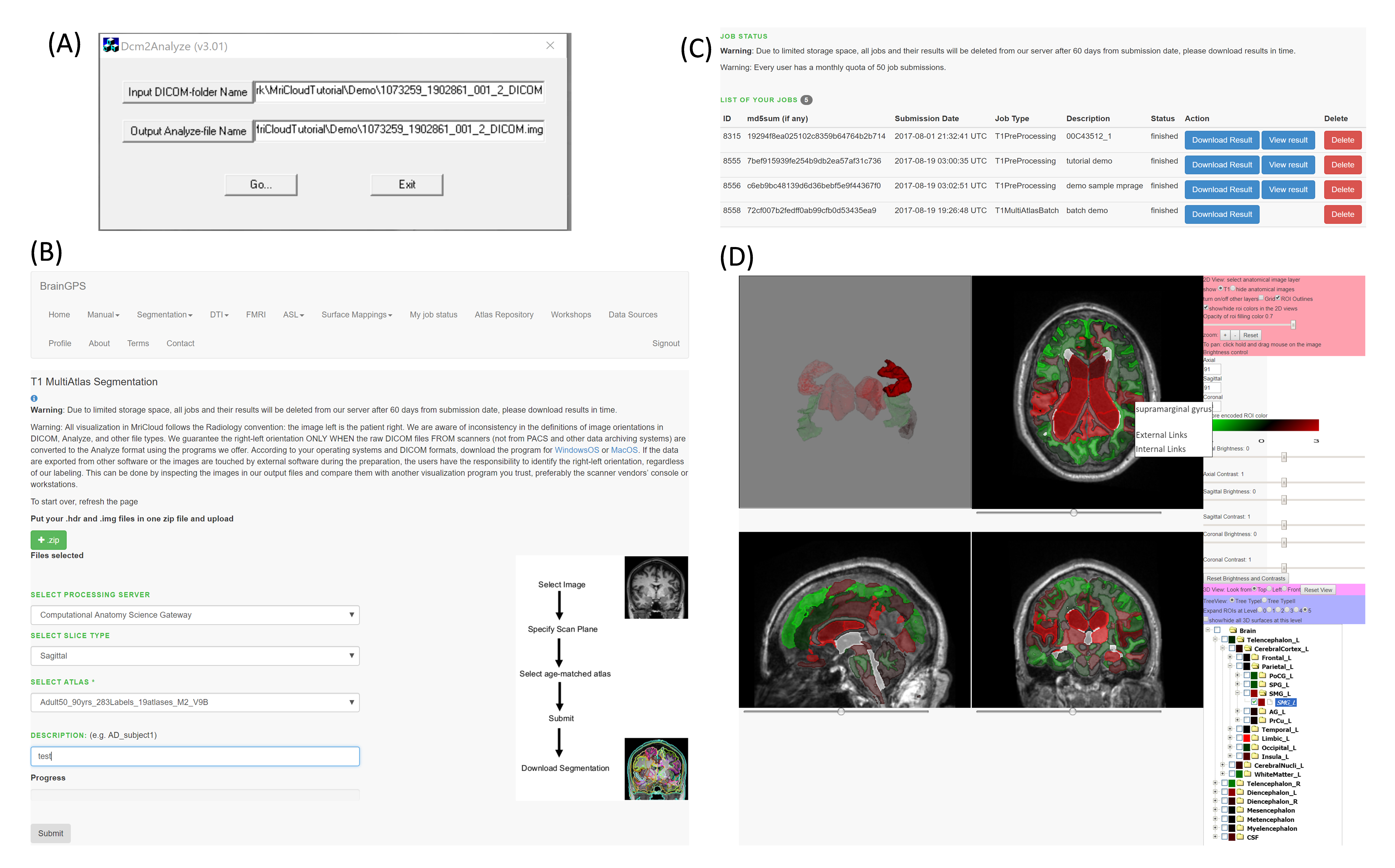 Whole-brain Segmentation and Change-point Analysis of
