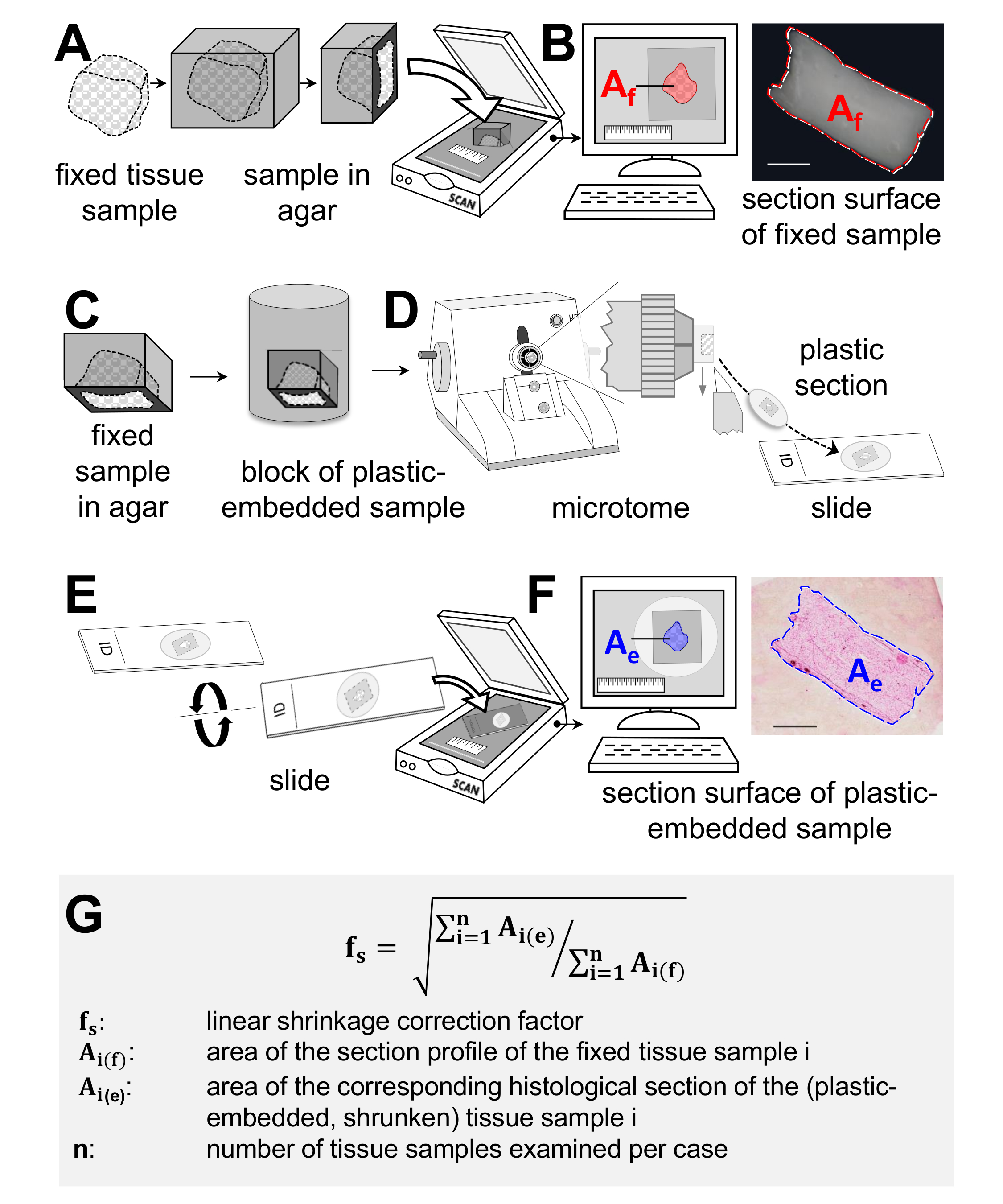 Sampling Strategies and Processing of Biobank Tissue Samples