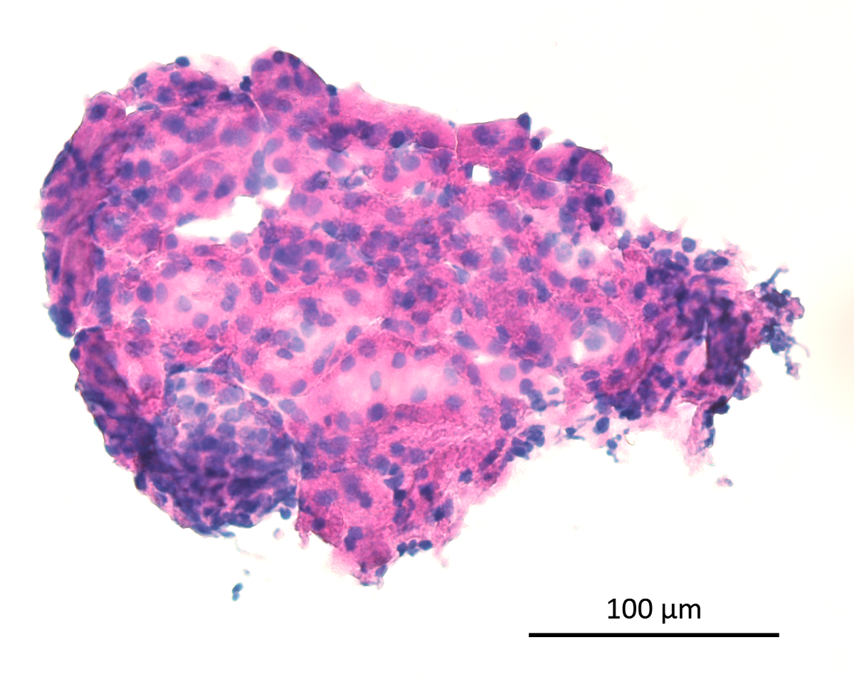 Microdissection of Primary Renal Tissue Segments and