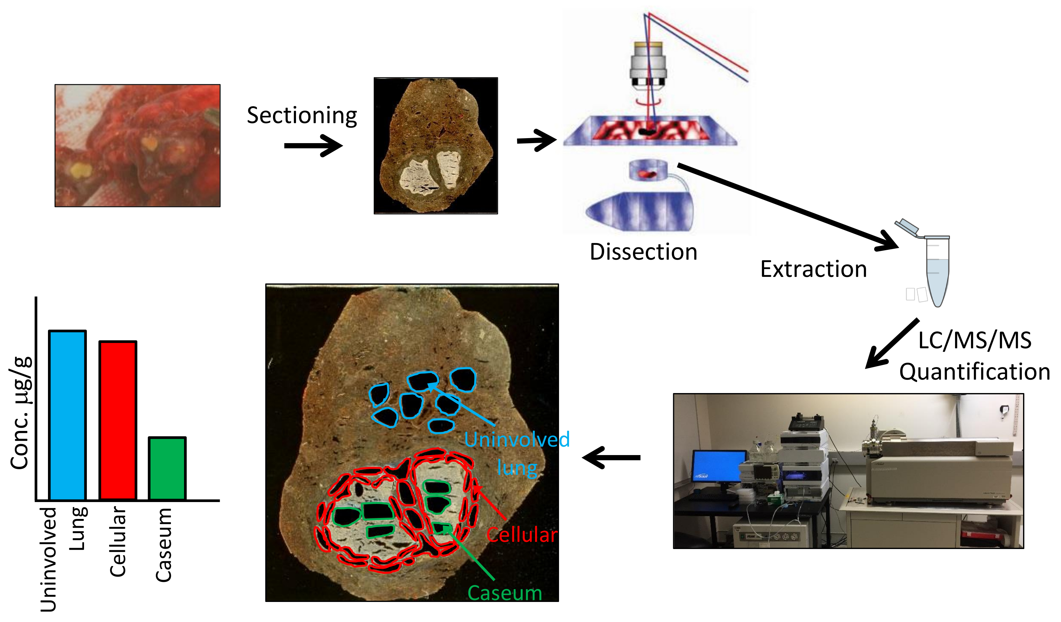 Spatial Quantification of Drugs in Pulmonary Tuberculosis Lesions by