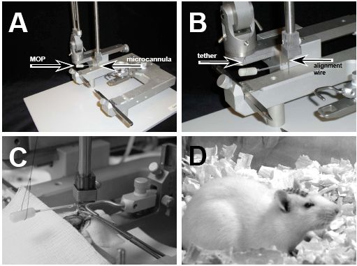 Implantation of microinfusion system. (A) Positioning of microinfusion system onto stereotaxic instrument. (B) The MOP is tethered using sterile suture to prevent its weight from disrupting the orientation of the microcannula. The microcannula is positioned for precise vertical entry into the brain using the alignment wire. (C) A microinfusion system is positioned for placement and fixation within an animal. (D) The design of the microinfusion system allows easy closure of the incision over a low-profile pedestal, reducing the risk infection and minimizing discomfort to the animal.