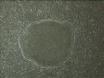 Propagazione di staminali embrionali umane (ES) Cellule thumbnail