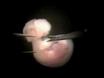 माउस पृष्ठीय अग्रमस्तिष्क Explant अलगाव thumbnail
