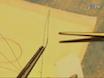 Diretta instillazione tracheale di soluti in polmone mouse thumbnail
