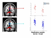Grundlagen der multivariaten Analyse in Neuroimaging-Daten thumbnail