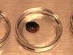 Infarto acuto del miocardio in topi thumbnail