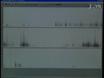 Yaşlı ve Parkinson Sıçanlar Ultrasonik seslenmelere Hedefe Yönelik Eğitim thumbnail
