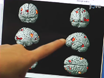 Probing the Brain in Autism Using fMRI and Diffusion Tensor Imaging thumbnail