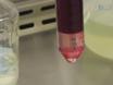 Establishment of Epstein-Barr Virus Growth-transformed Lymphoblastoid Cell Lines thumbnail