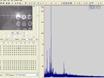 MALDI Imaging Mass Spectrometry of Neuropeptides in Parkinson's Disease thumbnail