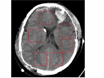Automated Midline Shift and Intracranial Pressure Estimation based on Brain CT Images thumbnail