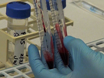 A Practical and Novel Method to Extract Genomic DNA from Blood Collection Kits for Plasma Protein Preservation thumbnail