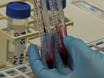 En praktisk och ny metod att extrahera genomisk DNA från Kits blodinsamling för Plasma Protein Preservation thumbnail