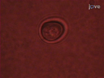 4D Imaging of Protein Aggregation in Live Cells thumbnail