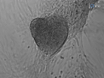 Generation of Human Cardiomyocytes: A Differentiation Protocol from Feeder-free Human Induced Pluripotent Stem Cells thumbnail