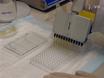 High-throughput Flow Cytometry Cell-based Assay to Detect Antibodies to N-Methyl-D-aspartate Receptor or Dopamine-2 Receptor in Human Serum thumbnail