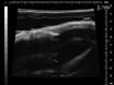 マウス同所性膀胱異種移植片の最小侵襲性の確立 thumbnail