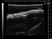 Minimalt invasiv Etablering af murine ortotopisk Blære xenotransplantater thumbnail