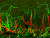 An Alkali-burn Injury Model of Corneal Neovascularization in the Mouse thumbnail