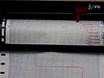 Analyse af translationsinitieringskodon under stress betingelser ved Polysomprofiler Profiling thumbnail