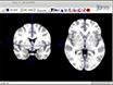 Network Analysis of the Default Mode Network Using Functional Connectivity MRI in Temporal Lobe Epilepsy thumbnail