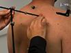 Измерение динамических Скапулярий кинематики Использование кластера акромиального маркер, чтобы минимизировать смещение кожи Артефакт thumbnail