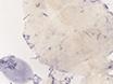Kidney Regeneration in Adult Zebrafish by Gentamicin Induced Injury thumbnail