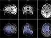 Design and Implementation of an fMRI Study Examining Thought Suppression in Young Women with, and At-risk, for Depression thumbnail