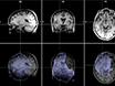 تصميم وتنفيذ دراسة الرنين المغناطيسي الوظيفي دراسة الفكر قمع في الشابات مع والمعرضة للخطر، للاكتئاب thumbnail