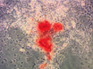 Isolement et enrichissement du tissu adipeux humain cellules stromales pour ostéogenèse accrue thumbnail